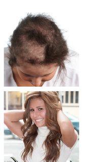 Orlando hair-loss